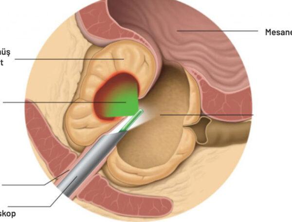 Lazer Prostat Ameliyatı